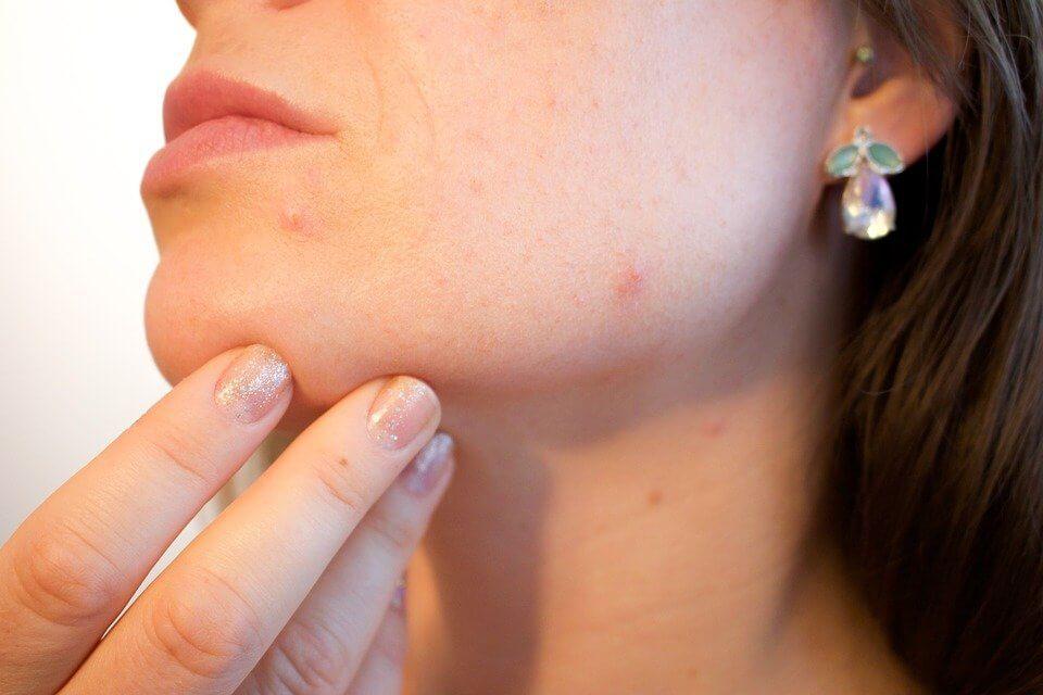 Zabiegi kosmetyczne podwyższonego ryzyka